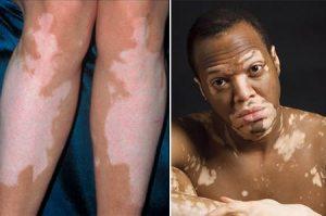 doenças de pele